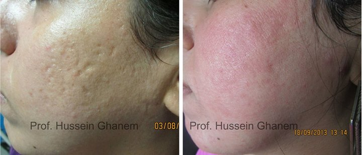 Acne Scar combined treatment with filler plus fractional CO2 laser