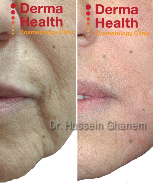 Nasolabial Folds treatment with dermal fillers