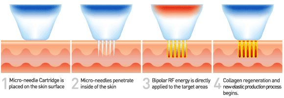 Fractional Micro needle Radiofrequency