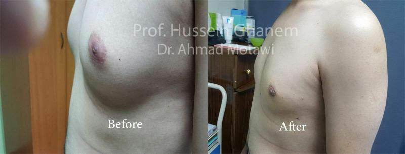 Gynecomastia treatment